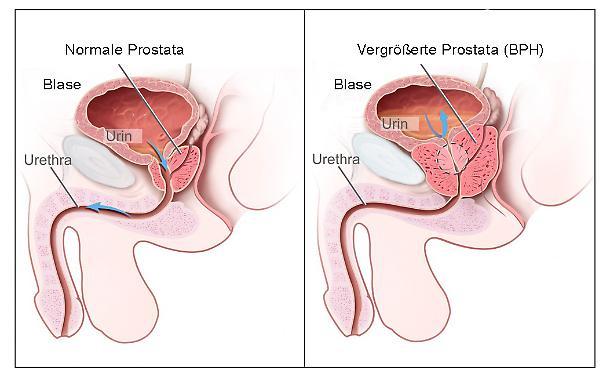 Esercizio Bubnovsky sulla prostata - Vitaprost più Kazan