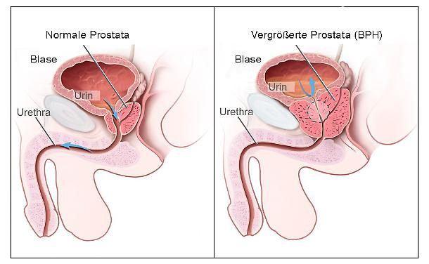 tumore alla prostata zona en